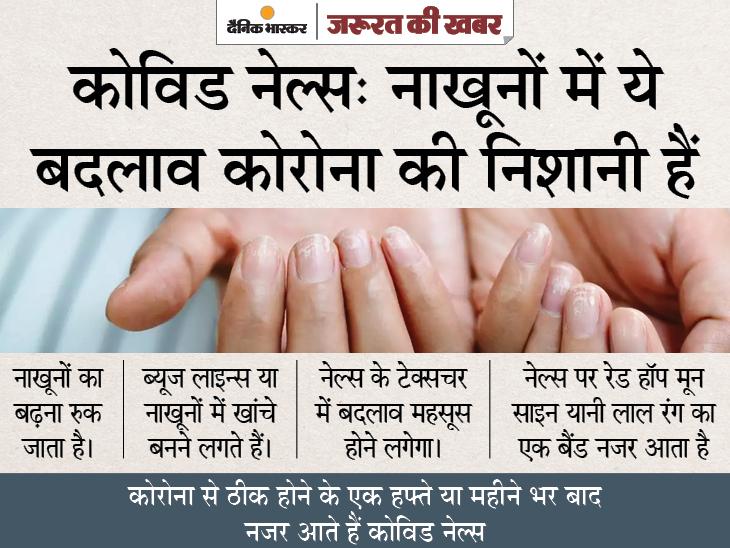 नाखूनों में भी दिखे कोरोना संक्रमण के संकेत, ब्यूज लाइन्स और रेड हॉप मून हो सकते हैं लक्षण|ज़रुरत की खबर,Zaroorat ki Khabar - Dainik Bhaskar