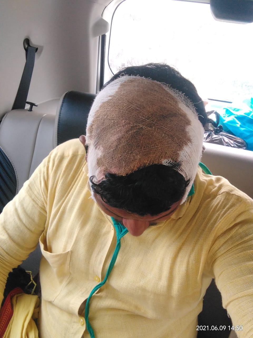 रंगदारी नहीं दी तो ईंट भट्ठे पर की फायरिंग; संचालक के भाई को मारा चाकू, तीन बदमाशों के खिलाफ केस दर्ज गोरखपुर,Gorakhpur - Dainik Bhaskar