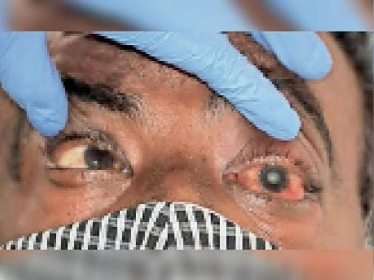 ब्लैक फंगस के मरीजों के इलाज के लिए 1700 वॉयल एंफोटेरेसीन बी इंजेक्शन पटना पहुंचा|पटना,Patna - Dainik Bhaskar