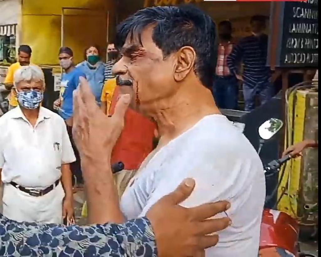 मामूली विवाद के बाद रिटायर्ड पुलिसकर्मी ने दो बेटों को गोली मारी; एक की मौत, दूसरा वेंटिलेटर पर|महाराष्ट्र,Maharashtra - Dainik Bhaskar