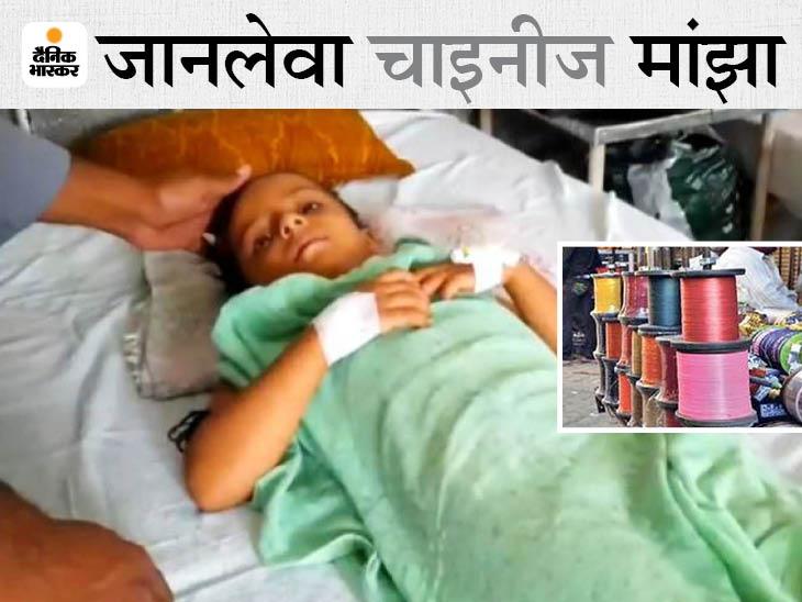 पिता के साथ बाइक पर आगे बैठी थी 5 साल की बेटी, गर्दन पर 36 टांके लगे; मां बोली- बेटी को तड़पता देख खून खौल रहा, पुलिस कार्रवाई करे|उदयपुर,Udaipur - Dainik Bhaskar