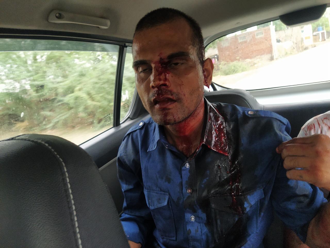 रास्ते में बदमाशों ने किया हमला, तीन लोग घायल, गंभीर अवस्था में टोंक के सआदत अस्पताल में कराया गया भर्ती टोंक,Tonk - Dainik Bhaskar
