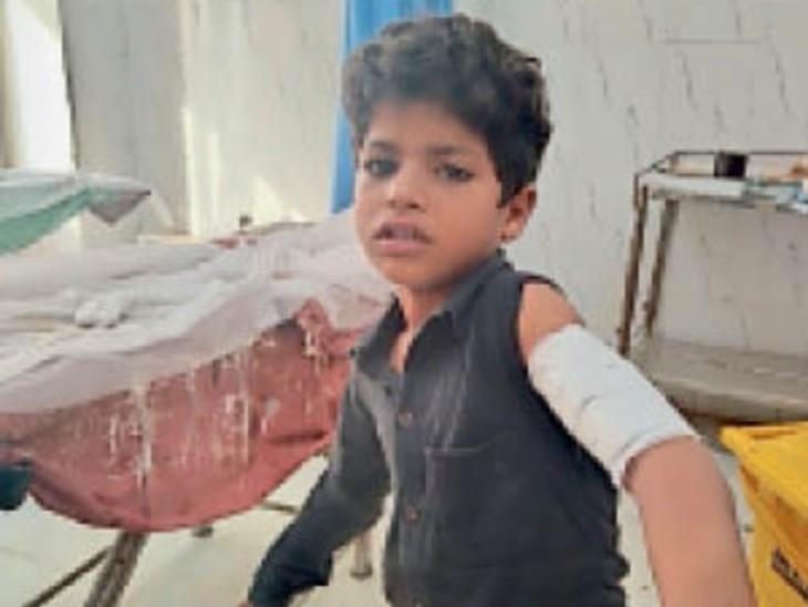भरतपुर। पागल कुत्ते के काटने से घायल बालक। - Dainik Bhaskar