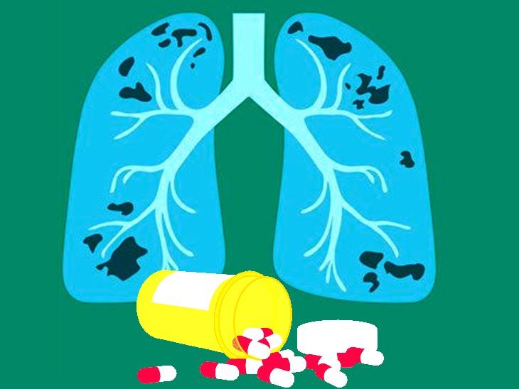 कॉमन एंटीबायोटिक डॉक्सीसायक्लीन टीबी के मरीजों को राहत देती है, यह फेफड़ों को डैमेज होने से बचाने के साथ रिकवरी भी तेज करती है लाइफ & साइंस,Happy Life - Dainik Bhaskar