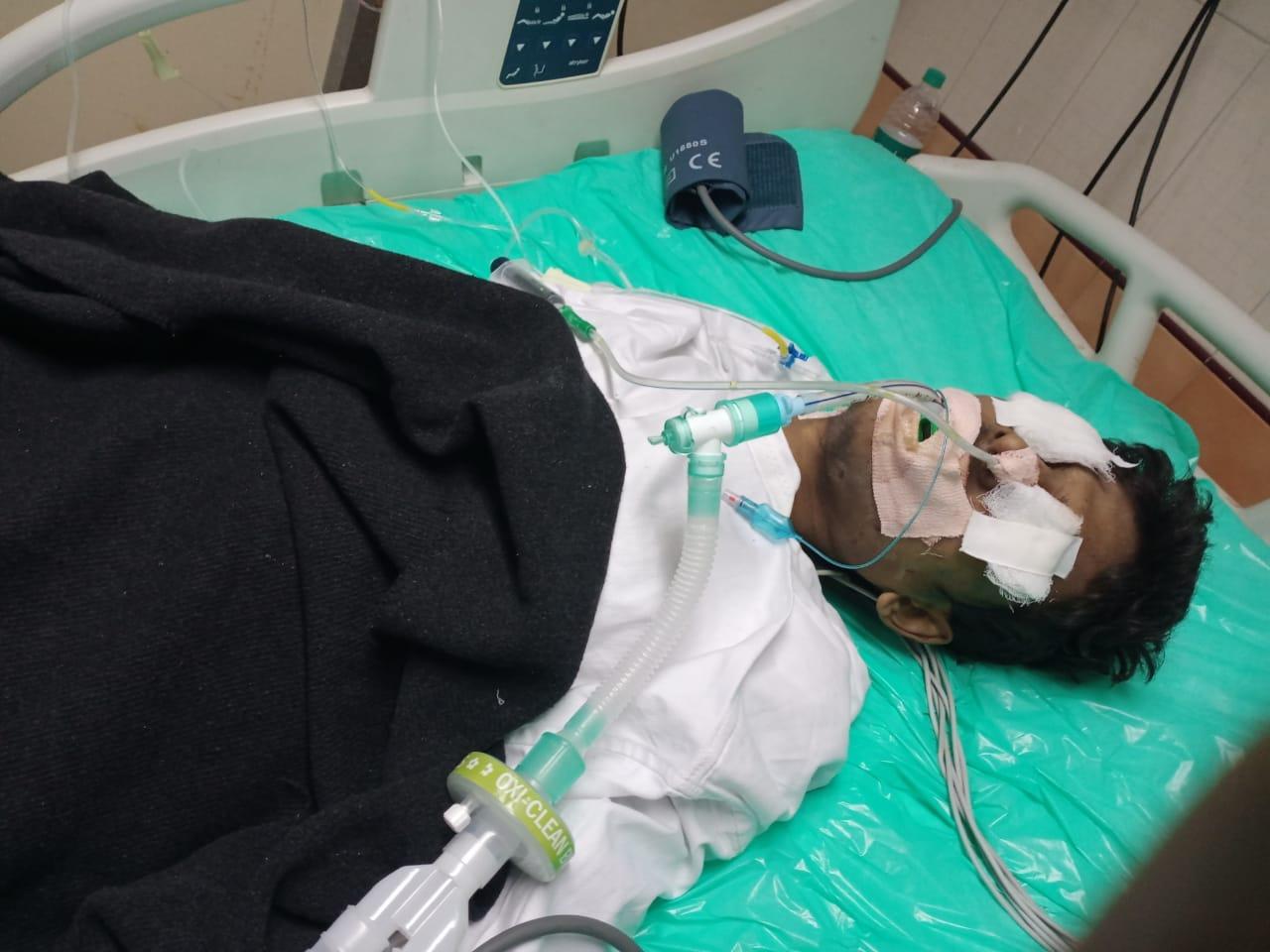 फिलहाल मरीज की हालत गंभीर बनी हुई है और उसे अभी भी वेंटीलेटर पर रखा गया है।