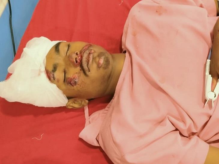 एक ने घटनास्थल पर दम तोड़ा, दूसरे की इलाज के दौरान मौत, तीसरे की स्थिति गंभीर|मोतिहारी (पूर्वी चंपारण),Motihari (East Champaran) - Dainik Bhaskar