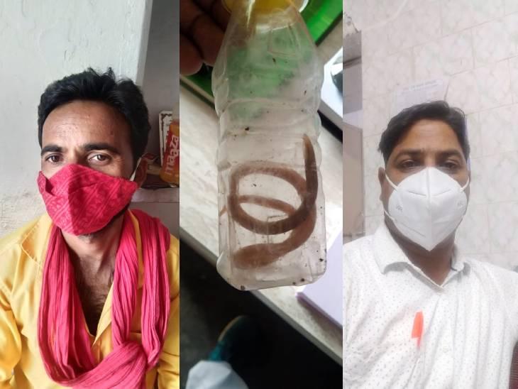 दो साल से दर्द से परेशान था, डॉक्टर ने दवा दी तो मुंह से डेढ़ फीट लंबा कीड़ा निकला; मेडिकल कॉलेज के डीन बोले- हो सकता है राउंड वर्म! रीवा,Rewa - Dainik Bhaskar