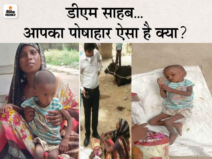 अफसरों ने कहा- भूखा नहीं रहता था परिवार, हम राशन भी दे रहे और पोषाहार भी; पर बच्ची की कुपोषित हालत की तस्वीर ने पोल खोल दी|लखनऊ,Lucknow - Dainik Bhaskar