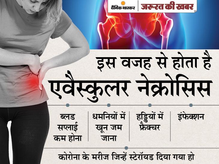 कोरोना के बाद जोड़ों में दर्द एवैस्कुलर नेक्रोसिस हो सकता है, जॉइंट रिप्लेसमेंट करवाना पड़ सकता है; मुंबई में मिले तीन मरीज|ज़रुरत की खबर,Zaroorat ki Khabar - Dainik Bhaskar