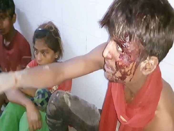 नाली विवाद को लेकर शुरू हुआ था झगड़ा, खूब चले लाठी-डंडे, दोनों पक्षों के 6 से ज्यादा लोग घायल|कानपुर,Kanpur - Dainik Bhaskar