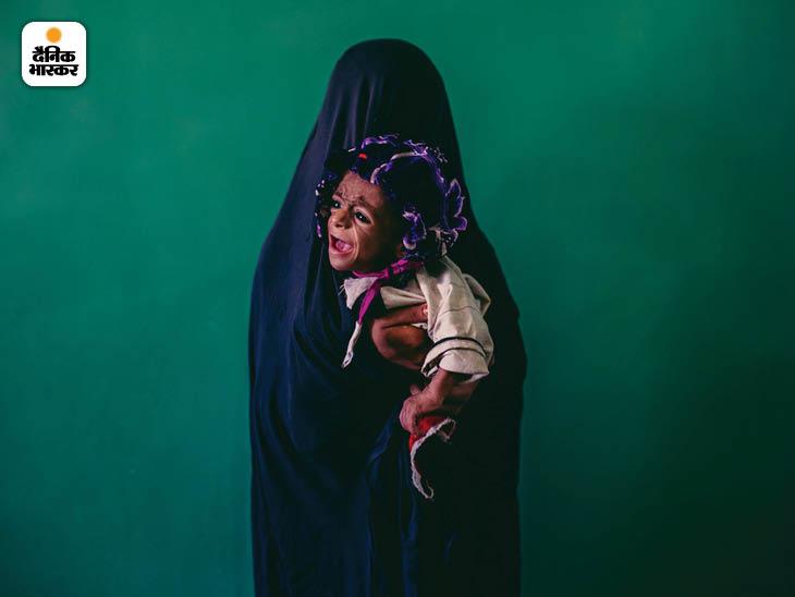 सितंबर 2013: अफगानिस्तान के हेलमंड प्रांत के लशगर गार के एक अस्पताल में 15 साल की मां इस्लाम बीबी की गोद में आठ माह का कुपोषित समीउल्लाह। फोटो: डेनियल बेरेहुलाक