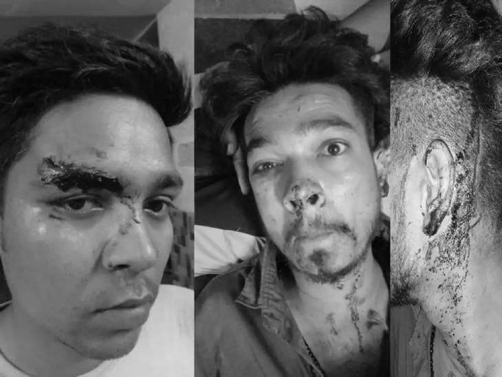 हादसे में घायल नरसिंहपुर निवासी युवक।
