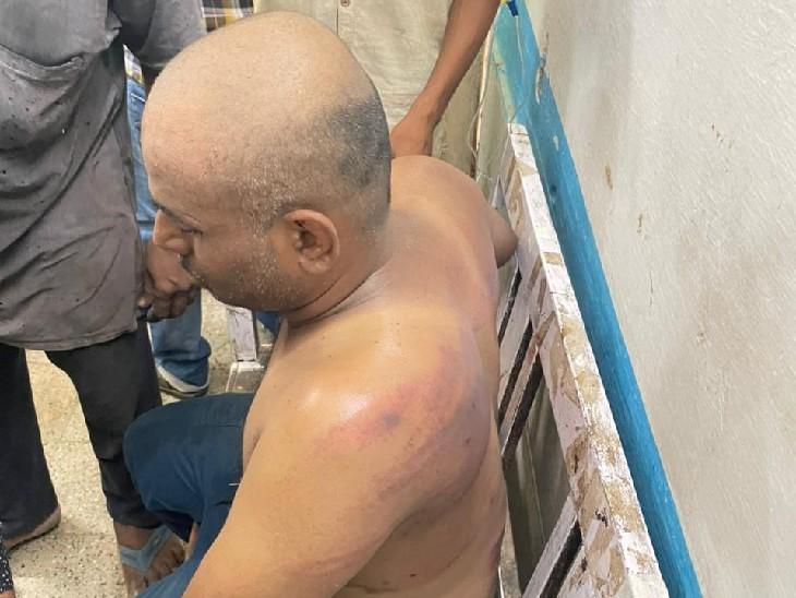 मारपीट में उमाकांत को भी गंभीर चोटें आईं हैं।