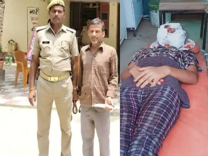 छेड़छाड़ का विरोध करने पर घर में घुसे दबंग ने किए थे चाकू से 15 वार, चेहरे पर हो गए हैं कई घाव; बीएचयू में होगी प्लास्टिक सर्जरी|वाराणसी,Varanasi - Dainik Bhaskar
