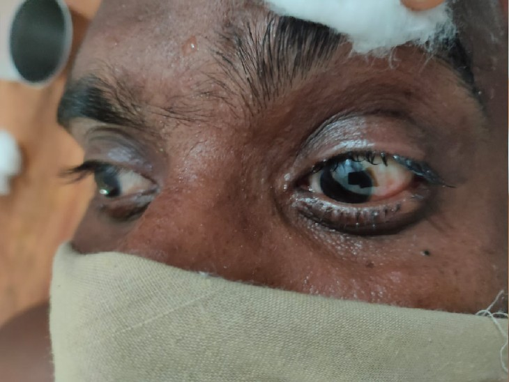 पटना में बिना सर्जरी ग्लूकोमा का ऑपरेशन, आयुर्वेदिक अस्पताल में पुरानी पद्धति से मरीजों पर बड़ा प्रयोग|पटना,Patna - Dainik Bhaskar