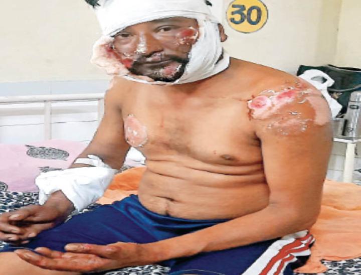 सिविल अस्पताल में घायल बिजली बोर्ड मुलाजिम। - Dainik Bhaskar