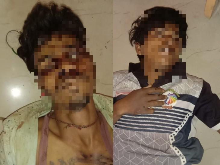 परिजनों ने दोनों मृतकों के चेहरे को भी क्षतिग्रस्त करने का प्रयास किया है।