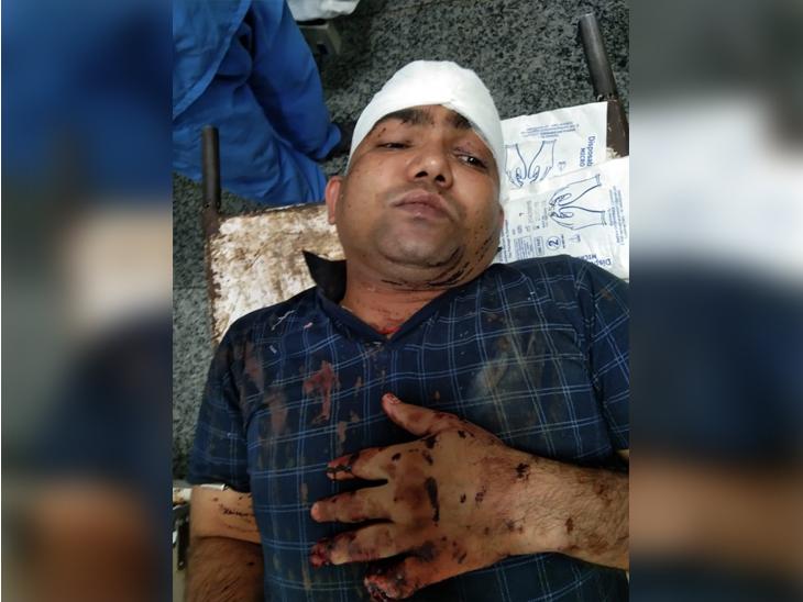 चौरीचौरा इलाके के तरकुलहा के पास हुए हमले में उनके सिर पर गंभीर चोट आई है। जबकि बाएं हाथ की दो अंगुलिया भी हमलावरों ने काट दी है। - Dainik Bhaskar