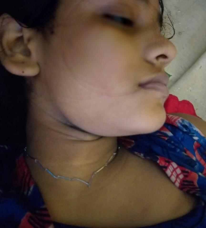 पिता समेत तीन लोगों को पुलिस ने लिया हिरासत में, नर्तकी की मां ने आरोपितों पर जबरन देह व्यापार का लगाया आरोप सासाराम,Sasaram - Dainik Bhaskar