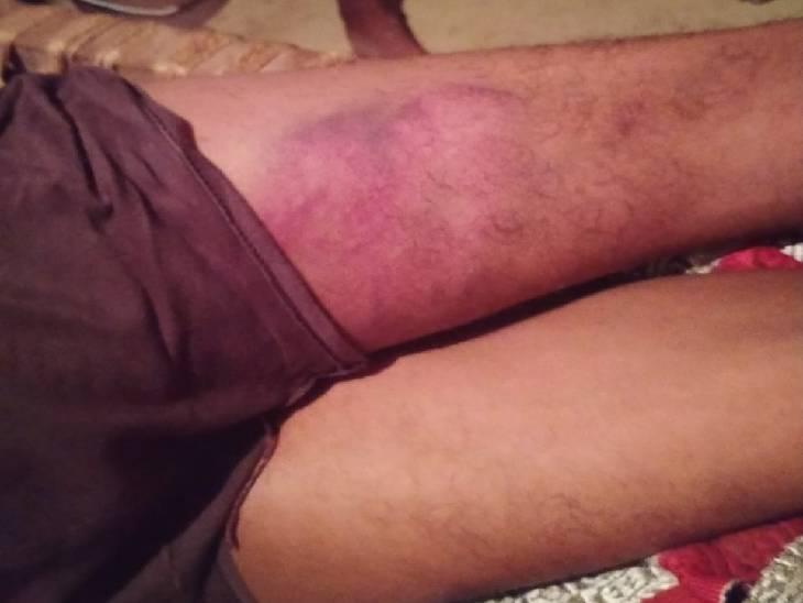 थाने में पुलिस की मार से मजदूर के शरीर पर पड़े निशान।