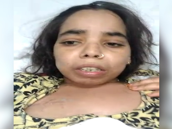 दिल्ली से घायल महिला ने जारी किया वीडियो, बोली- पति के गिरफ्तार होने के बाद जेठ ने पति के बचाव में जबरदस्ती बनवाया था वीडियो, भाई की हत्या की दी थी धमकी ग्वालियर,Gwalior - Dainik Bhaskar