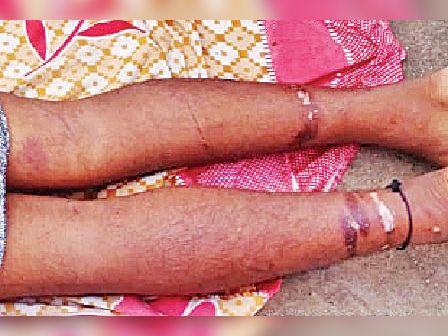 बर्बरता के सबूत: पैर पर जख्म के निशान, अन्य जगह इससे भी बड़े जख्म।
