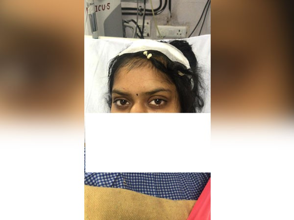 ऑपरेशन के बाद युवती रिकवर हो रही है और जल्द ही उसे डिस्चार्ज कर दिया जाएगा।