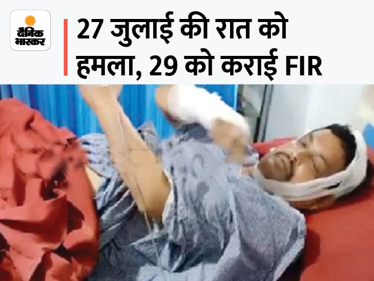 रात 1 बजे फोन करके बुलाया, 3 लोगों ने मारपीट की, गर्म तेल से हाथ-चेहरा झुलसा; पुलिस बोली- कहानी में झोल है|छत्तीसगढ़,Chhattisgarh - Dainik Bhaskar