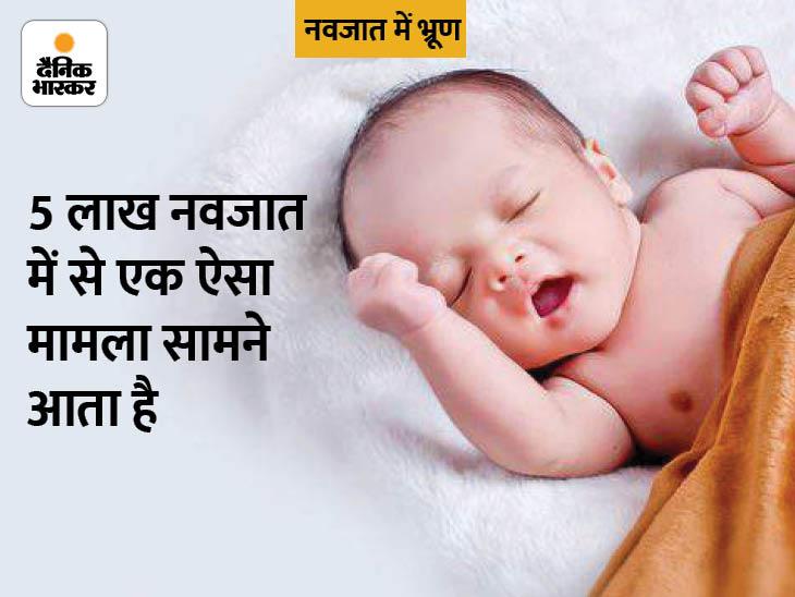 अल्ट्रासाउंट और एक्स-रे करने के बाद नवजात में भ्रूण की पुष्टि हुई। सांकेतिक तस्वीर - Dainik Bhaskar