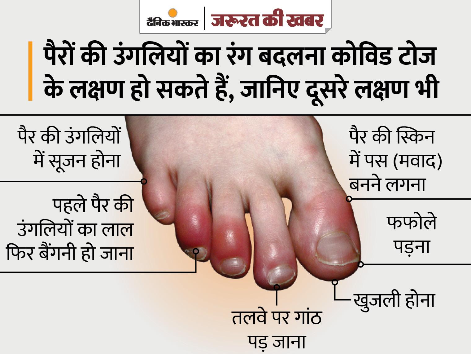 तेरह साल की सोफिया की उंगलियों में अल्सर हुआ, सूजन के साथ फफोले पड़े; जानिए क्या है कोविड टोज और इसके लक्षण|ज़रुरत की खबर,Zaroorat ki Khabar - Dainik Bhaskar