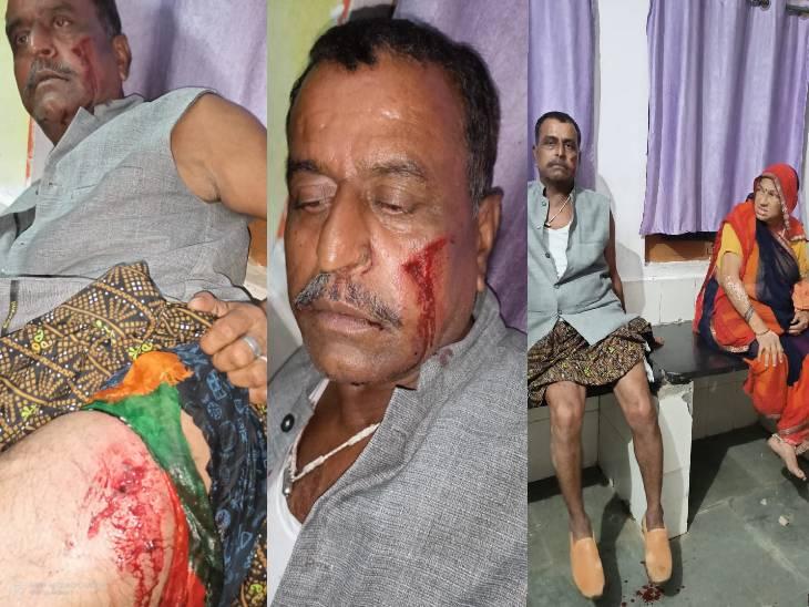 जबलपुर के भैरोघाट की घटना, दंपती छर्रे से लहूलुहान हालत में अस्पताल पहुंचे, बेलखेड़ा पुलिस जांच में जुटी|जबलपुर,Jabalpur - Dainik Bhaskar
