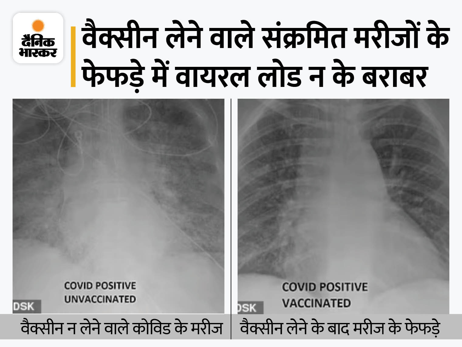वैक्सीन न लेने वाले कोरोना पेशेंट के फेफड़े में दिखे सफेद धब्बे, यही ऑक्सीजन की कमी का कारण; टीका लगवाने वालों में ऐसा नहीं हुआ|लाइफ & साइंस,Happy Life - Dainik Bhaskar