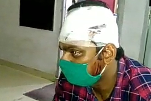 मुरादाबाद में सरेआम फाड़ा था ट्रेनी दरोगा का सिर, मौके से पकड़े गए BJP नेता के बेटे को क्लीन चिट, पीड़ित ने कहा- इंसाफ नहीं मिलने से डिप्रेशन में हूं|मुरादाबाद,Moradabad - Dainik Bhaskar