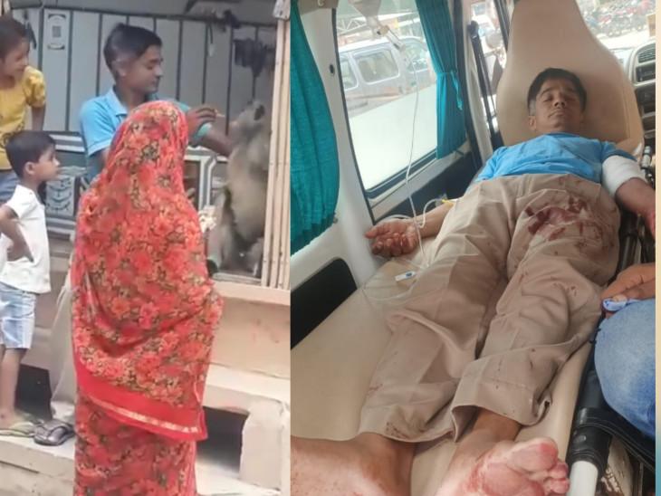 बंदर के काटने से युवक के हाथ की नश कट गई। हाथ से बहता खून देख युवक अस्पताल गया। वहां से जोधपुर रेफर किया गया। - Dainik Bhaskar