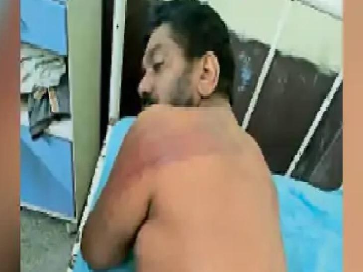 सिविल अस्पताल में होमगार्ड मुलाजिम बलविंदर सिंह के शरीर पर पड़े डंडों के निशान दिखाते हुए। - Dainik Bhaskar