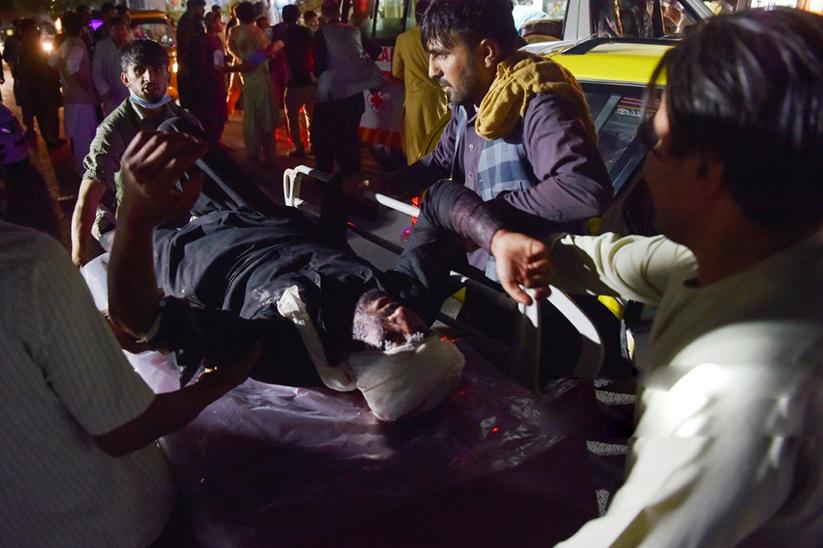 ब्लास्ट में कई लोग बुरी तरह घायल हुए है। कुल घायलों की संख्या 120 से ज्यादा बताई जा रही है। ऐसे में मौत का आंकड़ा बढ़ भी सकता है।
