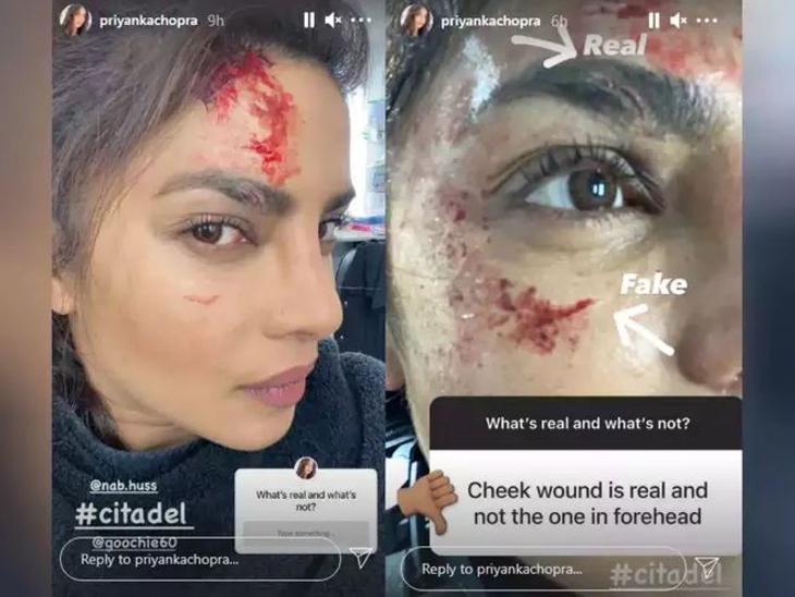 हॉलीवुड वेब सीरीज 'सिटाडेल' के सेट पर चोटिल हुईं प्रियंका चोपड़ा, फोटोज शेयर कर एक्ट्रेस ने बताया-कौन सी चोट है रियल|बॉलीवुड,Bollywood - Dainik Bhaskar