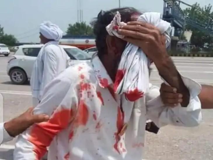 पुलिस के लाठीचार्ज में घायल किसान। - Dainik Bhaskar