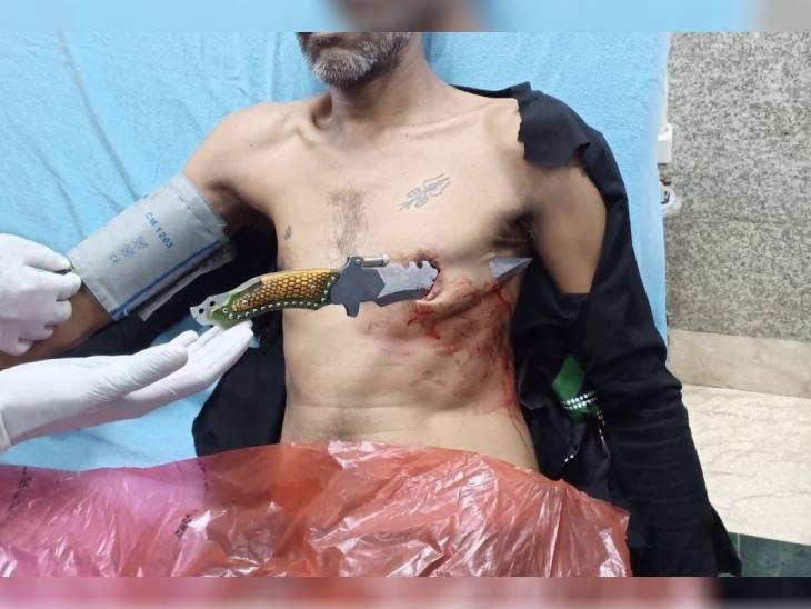 घर के बाहर खड़े युवक को खंजर घोंपा, भोपाल एम्स के डॉक्टरों ने सर्जरी कर निकाला|भोपाल,Bhopal - Dainik Bhaskar