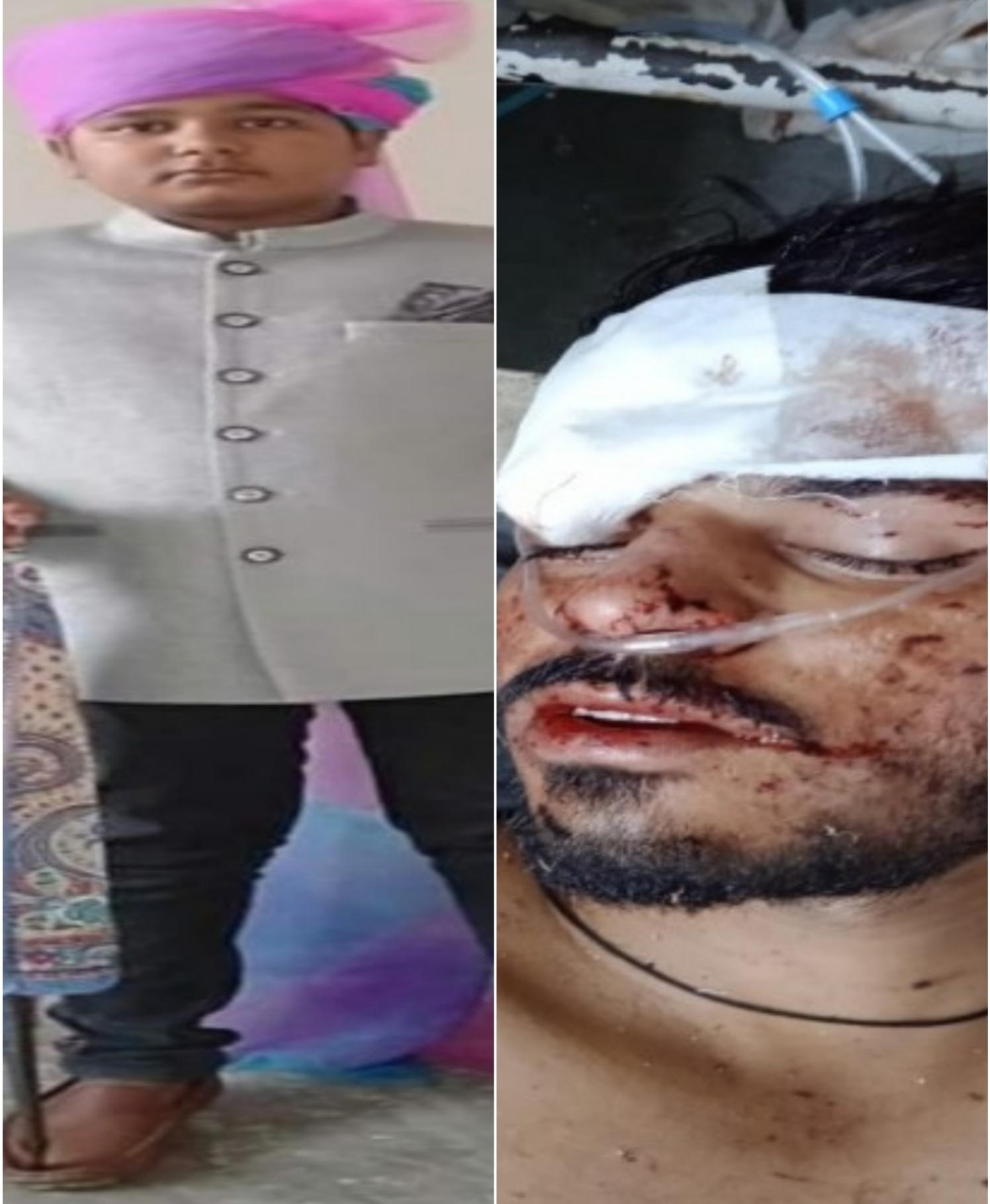 देवली में रोडवेज बस की टक्कर से स्कूटी सवार युवक ने मौके पर तोड़ा दम, टोंक-माधोपुर रोड पर बोलेरो की टक्कर से घायल बाइक सवार ने जयपुर में तोड़ा टोंक,Tonk - Dainik Bhaskar