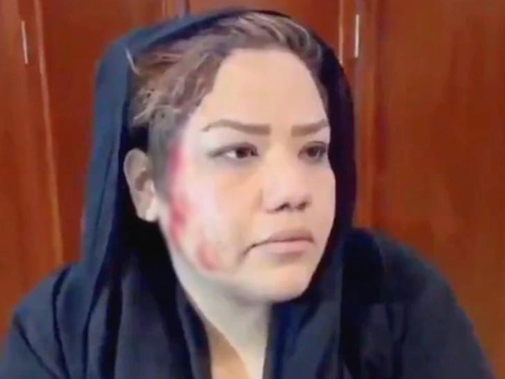 महिला कार्यकर्ता नरगिस सद्दात के चेहरे पर तालिबान ने बंदूक की बट से पीटा। उनके चेहरे से खून निकल आया। कई पत्रकारों ने भीड़ पर फायरिंग का भी आरोप लगाया है।