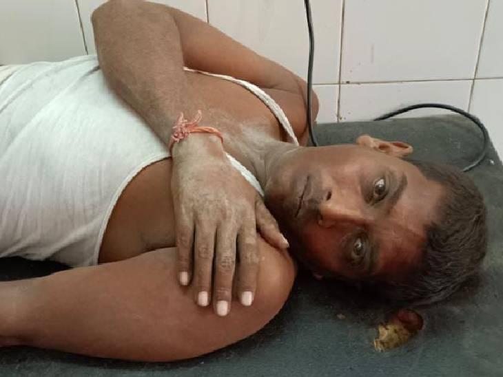 घायल मजदूर को अस्पताल में भर्ती कराया गया है।