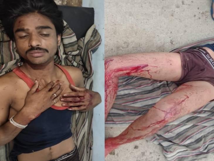 बेलखेड़ा के गुंदरई गांव में हुए फायिरंग में घायल युवक।