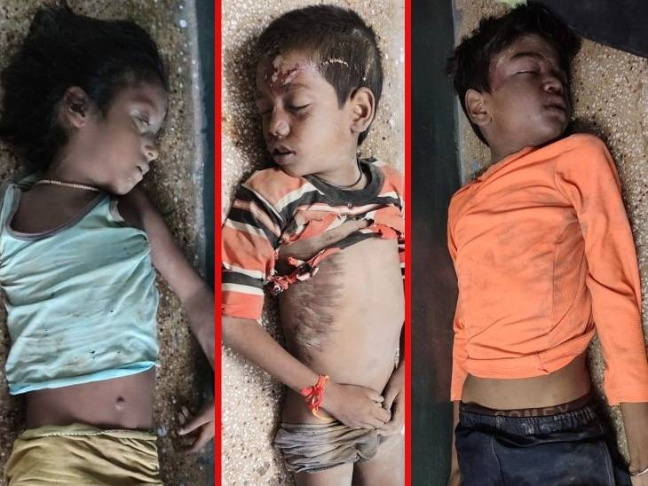 दो बच्चों की हालत गंभीर, एक को जिला अस्पताल रेफर किया गया|अमेठी,Amethi - Dainik Bhaskar
