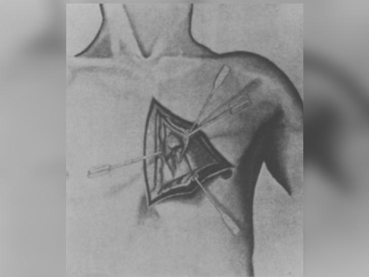 डॉक्टर रेन ने अपनी प्रेजेंटेशन में सर्जरी को कुछ इस तरह दिखाया था।