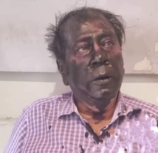 पार्षद पति की करंट से हुई मौत के बाद से नाराज है पार्षद, बातचीत के लिए बाहर आए तो काली स्याही से रंग दिया पूरा चेहरा|बीकानेर,Bikaner - Dainik Bhaskar