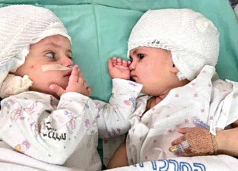 सिर से पीछे की तरफ जुड़ीं बच्चियों का जटिल ऑपरेशन, जन्म के सालभर बाद अब एक-दूसरे को देख सकती हैं जुड़वां बहनें|विदेश,International - Dainik Bhaskar