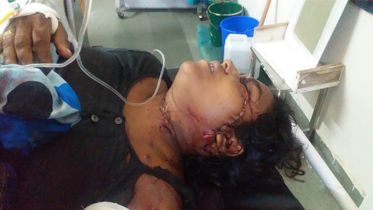 हमले में घायल महिला की हालत नाजुक। - Dainik Bhaskar