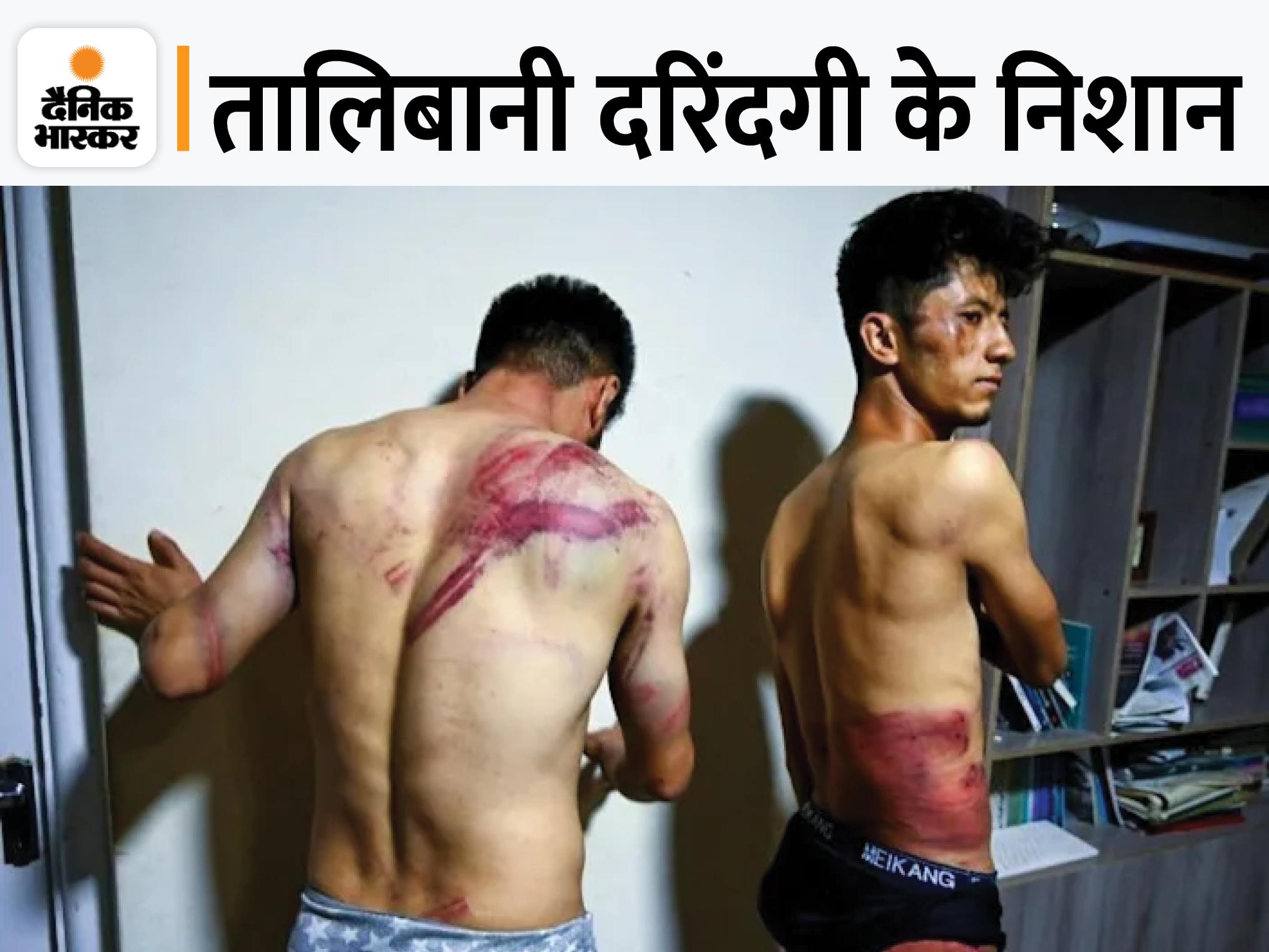 तालिबानी लड़ाकों ने पत्रकारों को नंगा कर बेंत, चाबुक और बिजली के तारों से पीटा, चेहरे को जूतों से जमीन पर रगड़ दिया|विदेश,International - Dainik Bhaskar