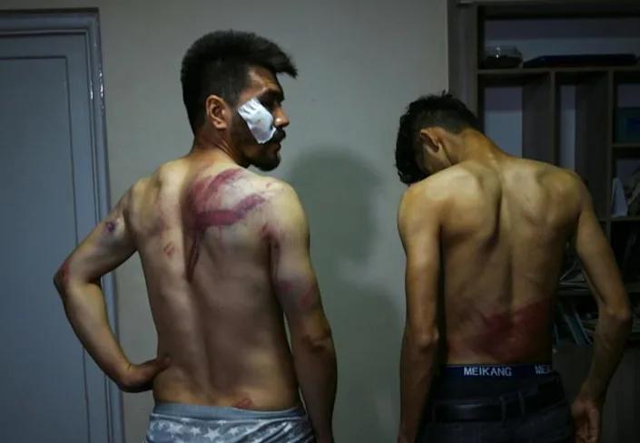 फोटोग्राफर नेमातुल्लाह नकदी और रिपोर्टर तकी दरयाबी अपनी चोट दिखाते हुए।